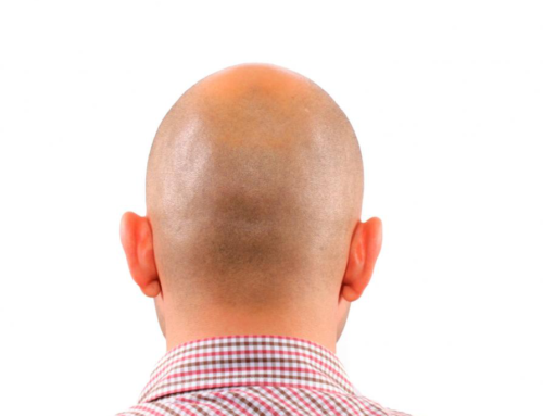 3 Causes of Hair Loss in Young Men
