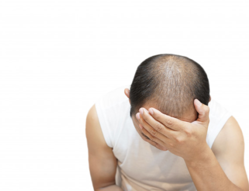 Early Detection of Hair Loss in Men!