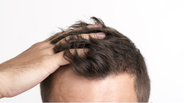 Frequent Hair Loss