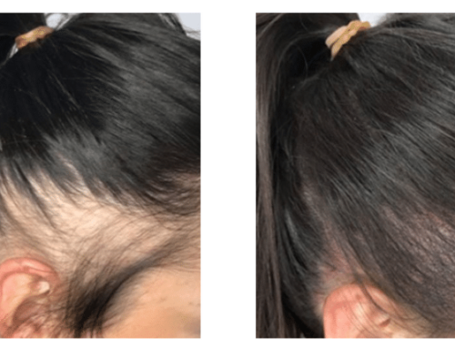 Conditions That Cause Hair Fall and Hair Loss for Women