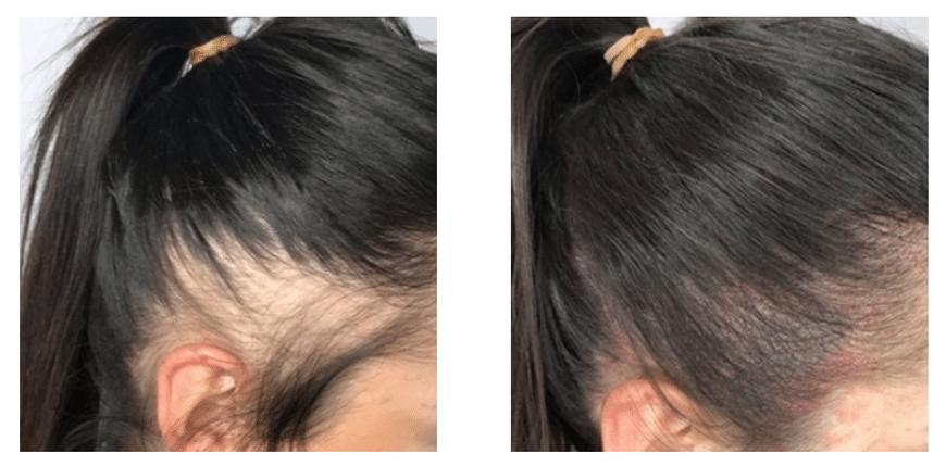 Hair Loss for Women