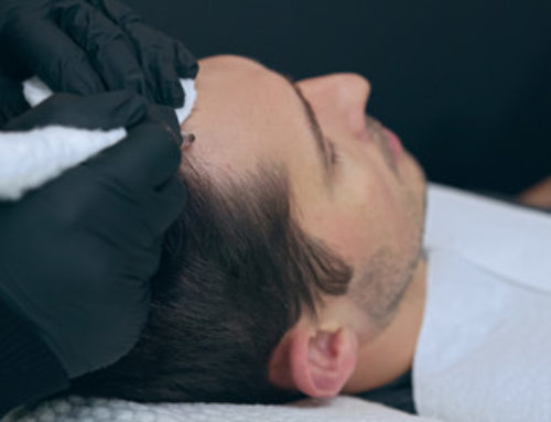 The Best Tips for Scalp Micropigmentation Aftercare